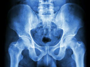 So this one time… when I broke my pelvis… Part 3 (of 3)